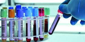 badania laboratoryjne krwi rogowiec