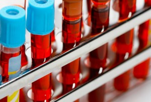 badania laboratoryjne krwi sopot