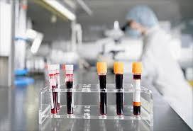 badania laboratoryjne krwi warszawa mokotów