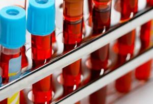 badania laboratoryjne krwi warszawa ochota