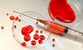 cedry wielkie badania krwi, cennik laboratorium
