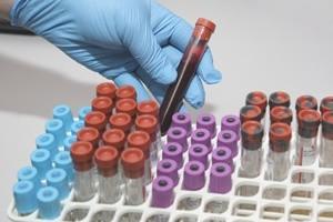 legionowo koło warszawy badania krwi