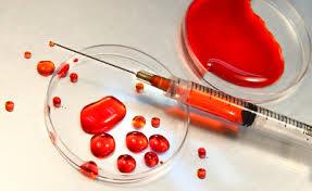 mińsk mazowiecki badania krwi, cennik laboratorium