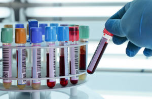 warszawa śródmieście badania krwi