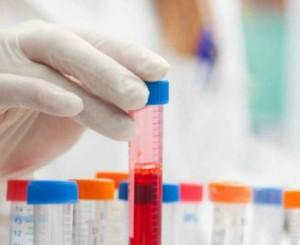 alat badanie krwi