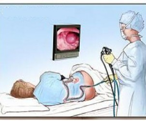 kolonoskopia kraków, pracownia kolonoskopii, pracownia endoskopii, pracownia endoskopowa w krakowie, badanie kolonoskopii , gastrolog, gastroenterolog