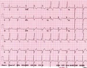 ekg kraków,ekg z opisem kraków, elektrokardiografia
