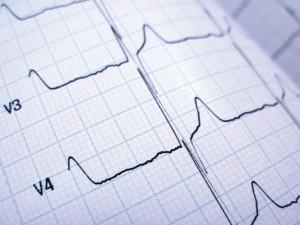 elektrokardiografia łódź, ekg z opisem łódź, ekg, badanie ekg