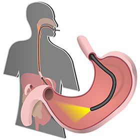 gastroskopia nowy sącz, pracownia gastroskopii, pracownia endoskopii, pracownia endoskopowa, badanie gastroskopi , gastrolog, gastroenterolog