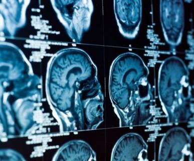 pracownia tomografii komputerowej, tk, badanie tk, badanie tomografii, tomograf, TK łódź
