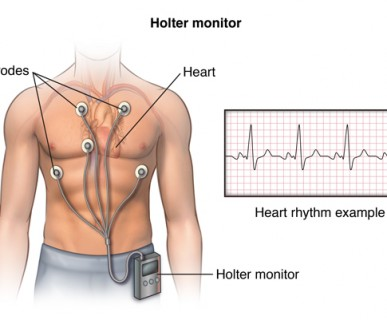 holter ekg kraków, holter ekspresowy , holter 24 h, holter 24 godz, poradnia kardiologiczna, pracownia holterowska, holter ekspresowy opis, szybki opis badania holtera ekg kraków