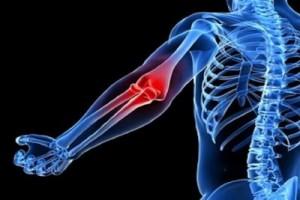 Poradnia ortopedyczna w Nowym Sączu