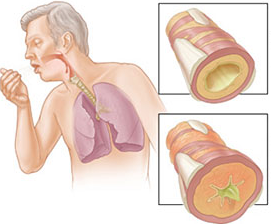 poradnia pulmonologiczna Nowy Sącz