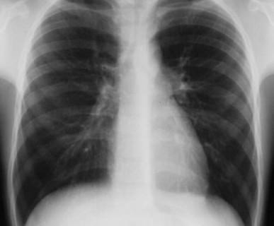 rentgen nowy sącz