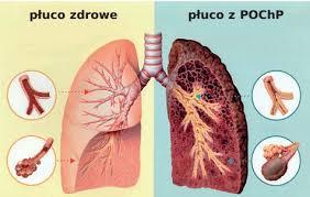Spirometria Nowy Sącz