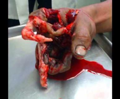 uszkodzeni ręki od farerwerków