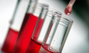 Badanie krwi Pińczów laboratorium cennik godziny otwarcia