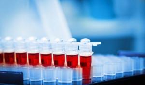 Badanie krwi Częstochowa laboratorium godziny otwarcia cennik wyniki krwi