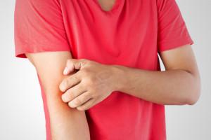 Alergia krzyżowa - atopowe zapalenie skóry