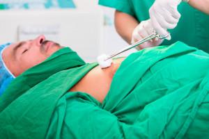 Tragiczny poziom opieki onkologicznej
