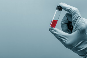 Badania krwi Czerniewice