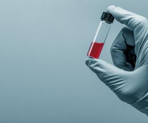 Badania krwi Wolbrom, laboratorium, cennik i godziny otwarcia