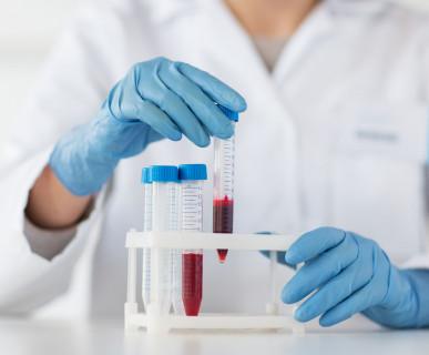 Badanie krwi Piotrków Trybunalski laboratorium