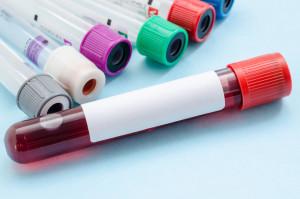 Badanie krwi Żory laboratorium