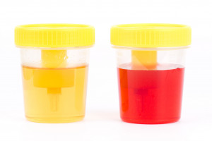 Ostrołęka cennik badań krwi