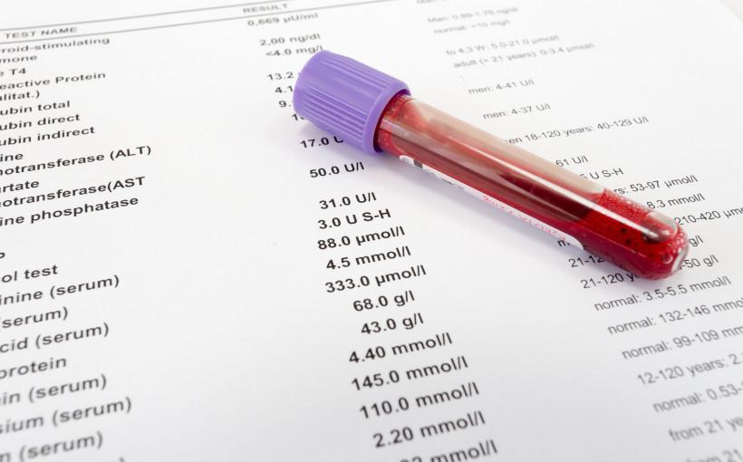 Stargard - gdzie zrobię badania krwi? Cennik