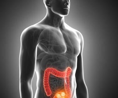 Rak jelita grubego – co zrobić, żeby nie zachorować?
